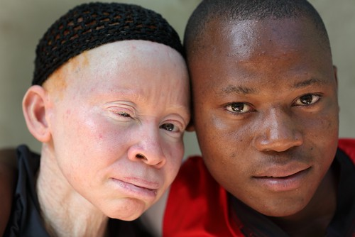 Tanzanian woman with albinism with her son