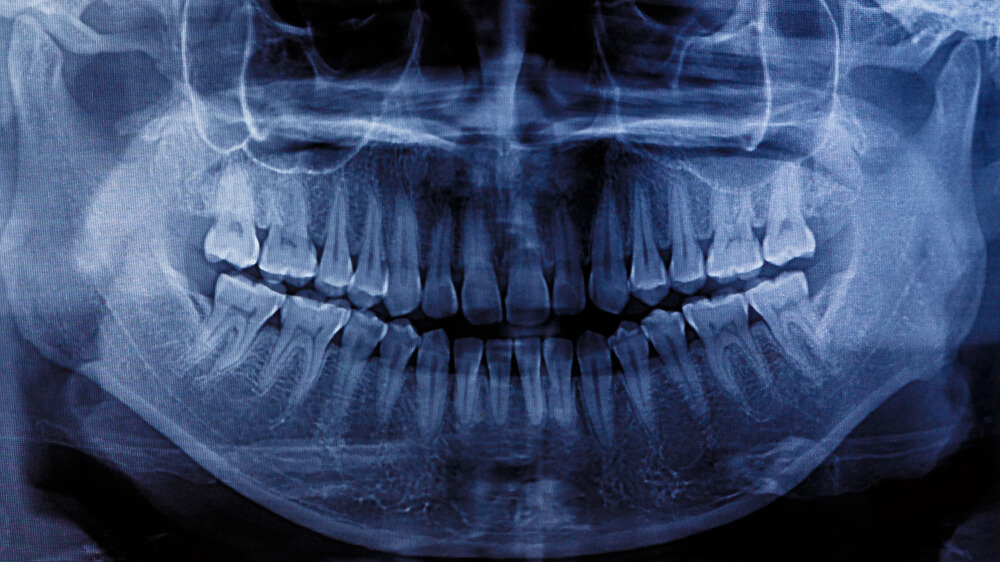 An x-ray of human teeth